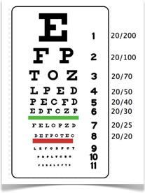 Agudeza Visual, Estudio Diagnóstico de Salud Ocular en Grupo Oftalmológico México