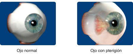pterigión, carnosidad, cirugía de pterigión, tratamiento de pterigión